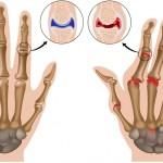 Artrite reumatoide: i cibi da evitare | Pazienti.it