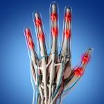 Artropatia di Jaccoud: per saperne di più | Pazienti.it