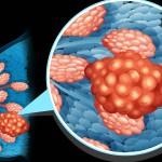 Tumore al seno: tutti gli esami consigliati per la prevenzione | Pazienti.it