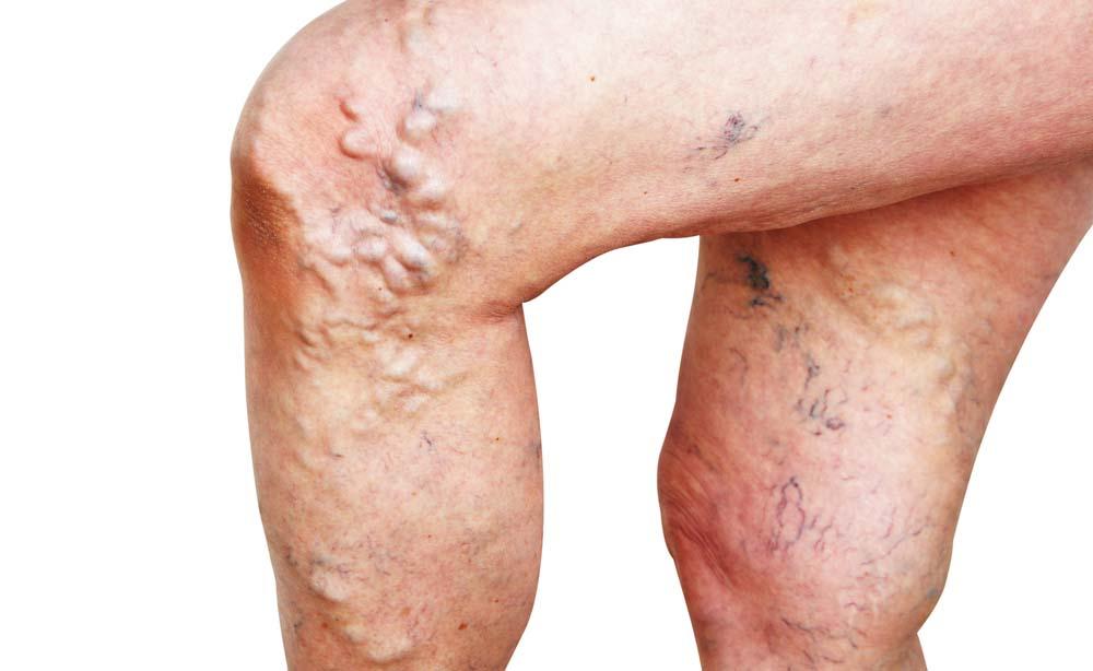 Danno di pelle a thrombophlebitis