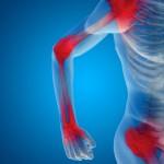 Quello che non sai sull'artrite reumatoide | Pazienti.it