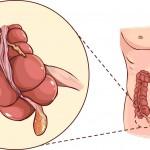 9 cose da sapere sull'appendice | Pazienti.it