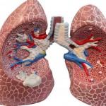 Tumore ai polmoni: ora c'è un farmaco che lo 'discioglie' | Pazienti.it