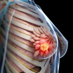 Tumore al seno: la prevenzione può davvero fare la differenza | Pazienti.it