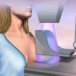 Malattia di Paget e tumore al seno | Pazienti.it