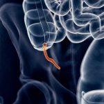 L'appendice serve a qualcosa (sì, proprio così) | Pazienti.it