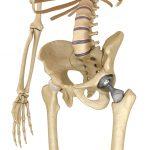 Artroprotesi dell'anca: in cosa consiste | Pazienti.it