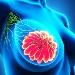 Dolore al seno: valutarne le cause per prevenire il tumore mammario | Pazienti.it