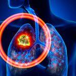 Tumore ai polmoni: il mal di schiena può essere un campanello d'allarme   Pazienti.it