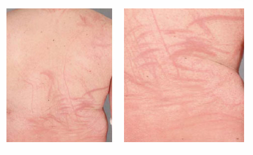 Dermatite da fungo della quercia: cosa è e come si cura | Pazienti.it