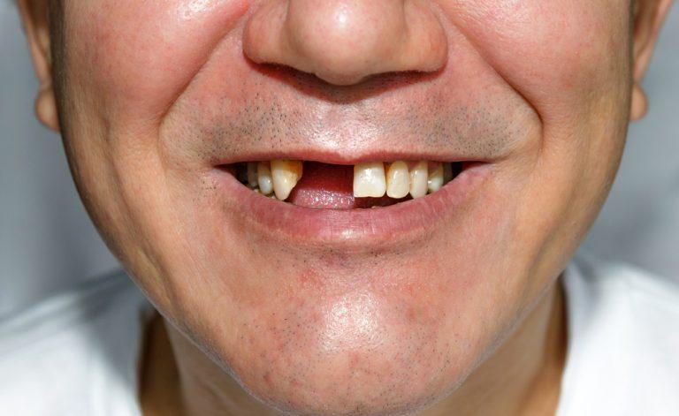 Denti che cadono (piorrea): come trattare il disturbo | Pazienti.it