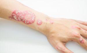 psoriasi: la verità su questa malattia autoimmune | Pazienti.it