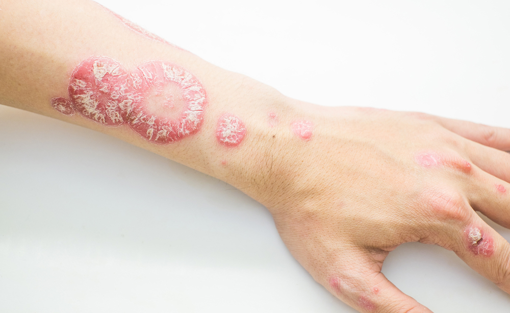 Il miglior unguento alleczema umido diventante