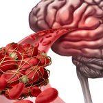 Le cattive abitudini che potrebbero causarti un ictus | Pazienti.it