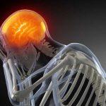 Trauma-cranico-150x150 | Pazienti.it