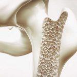 La dieta per prevenire l'osteoporosi | Pazienti.it