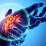 Artrite o artrosi: qual è la differenza? | Pazienti.it