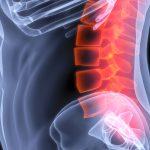 Stenosi vertebrale: curarla senza bisturi | Pazienti.it