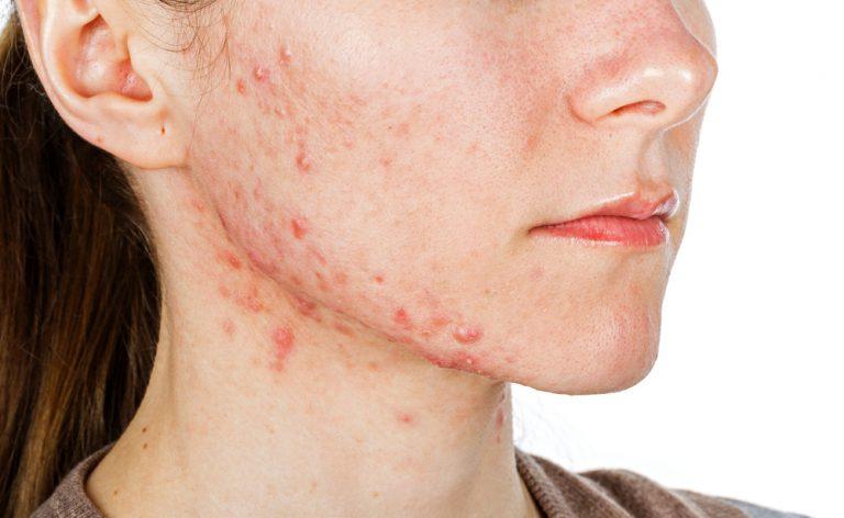 Maschere da posti sulla faccia da crema aspra
