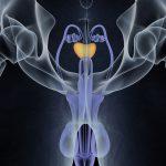 Prostatite-150x150 | Pazienti.it