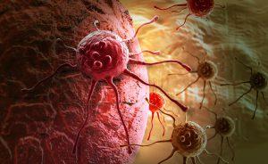 Tumore-allo-stomaco-e-colon-300x184 | Pazienti.it
