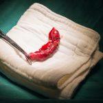 Appendice: quanto è davvero utile? | Pazienti.it