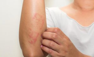 Psoriasi e dermatite seborroica: le differenze | Pazienti.it