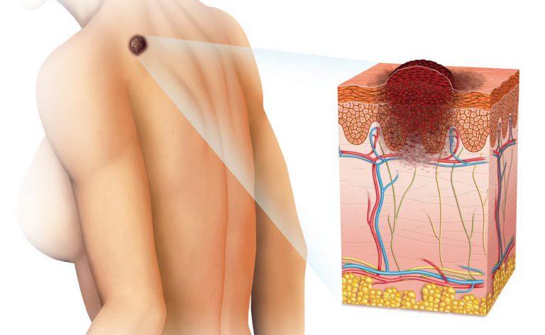 tumore della pelle: come prevenirlo | Pazienti.it