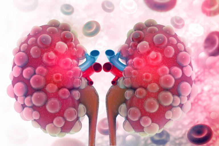 Ferritina alta? Attenzione alle malattie renali croniche! | Pazienti.it