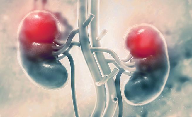 Come funziona la dialisi? Tutto ciò che dobbiamo sapere per vivere meglio! | Pazienti.it
