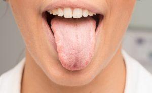 Candidosi orale, come combatterla | Pazienti.it