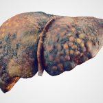Cirrosi epatica: tutti i rischi della malattia | Pazienti.it