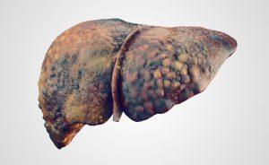 Cirrosi-epatica-300x184 | Pazienti.it