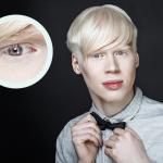 Albinismo oculare: non sempre i sintomi si manifestano | Pazienti.it