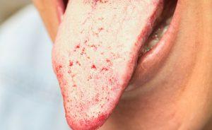 candida orale: sintomi, cause e rimedi naturali | Pazienti.it