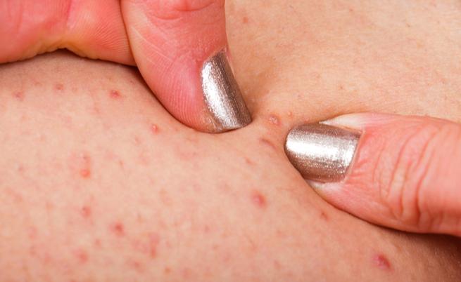 Follicolite: cause, sintomi e rimedi naturali per la follicolite da depilazione   Pazienti.it