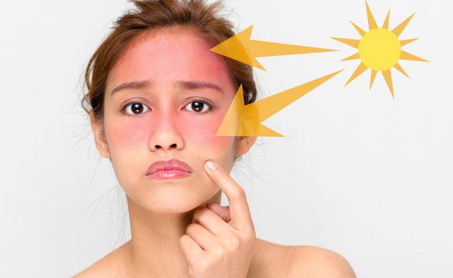 Scottature? Come eliminare quell'antiestetico rossore | Pazienti.it