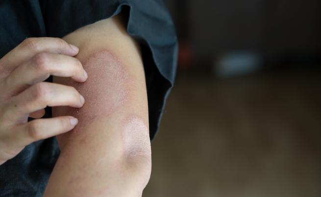 Prurito notturno: spesso la causa è da ricercarsi in malattie dermatologiche