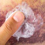 6 cose che non sai sui lividi | Pazienti.it