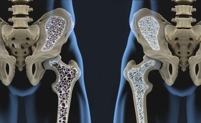 Cos'è l'osteoporosi? Quali sono i sintomi? Vediamolo insieme!