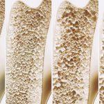 Osteoporosi: riconoscerla per curarla, anche in vacanza! | Pazienti.it