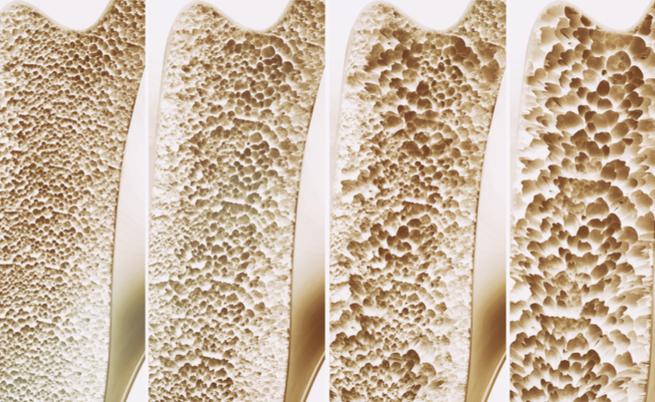 Osteoporosi: riconoscerla per curarla, anche in vacanza!   Pazienti.it