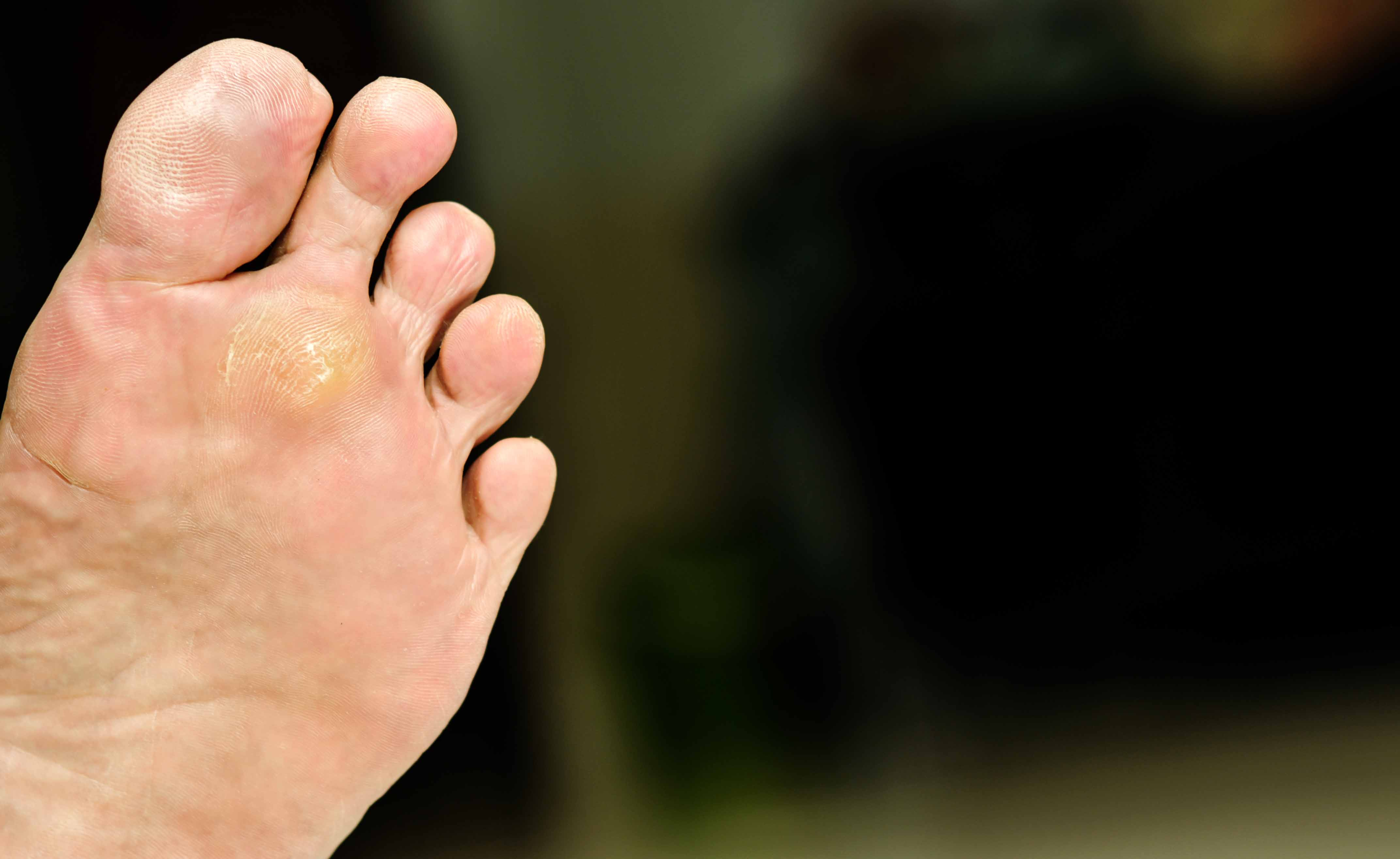 Verruche mani e piedi: prevenzione e rimedi