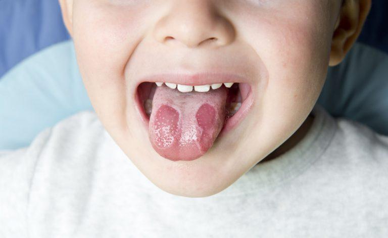 Le cause di quei dolorosi tagli sulla lingua | Pazienti.it
