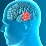Parkinson, un farmaco per il diabete potrebbe bloccarlo   Pazienti.it
