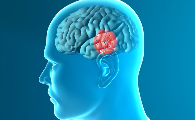 Parkinson, un farmaco per il diabete potrebbe bloccarlo | Pazienti.it