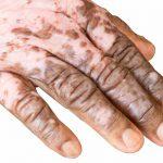 Albinismo e vitiligine: le caratteristiche delle patologie | Pazienti.it