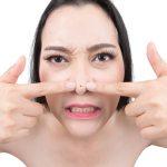 Punti neri: perchè schiacciarli non è una buona idea | Pazienti.it