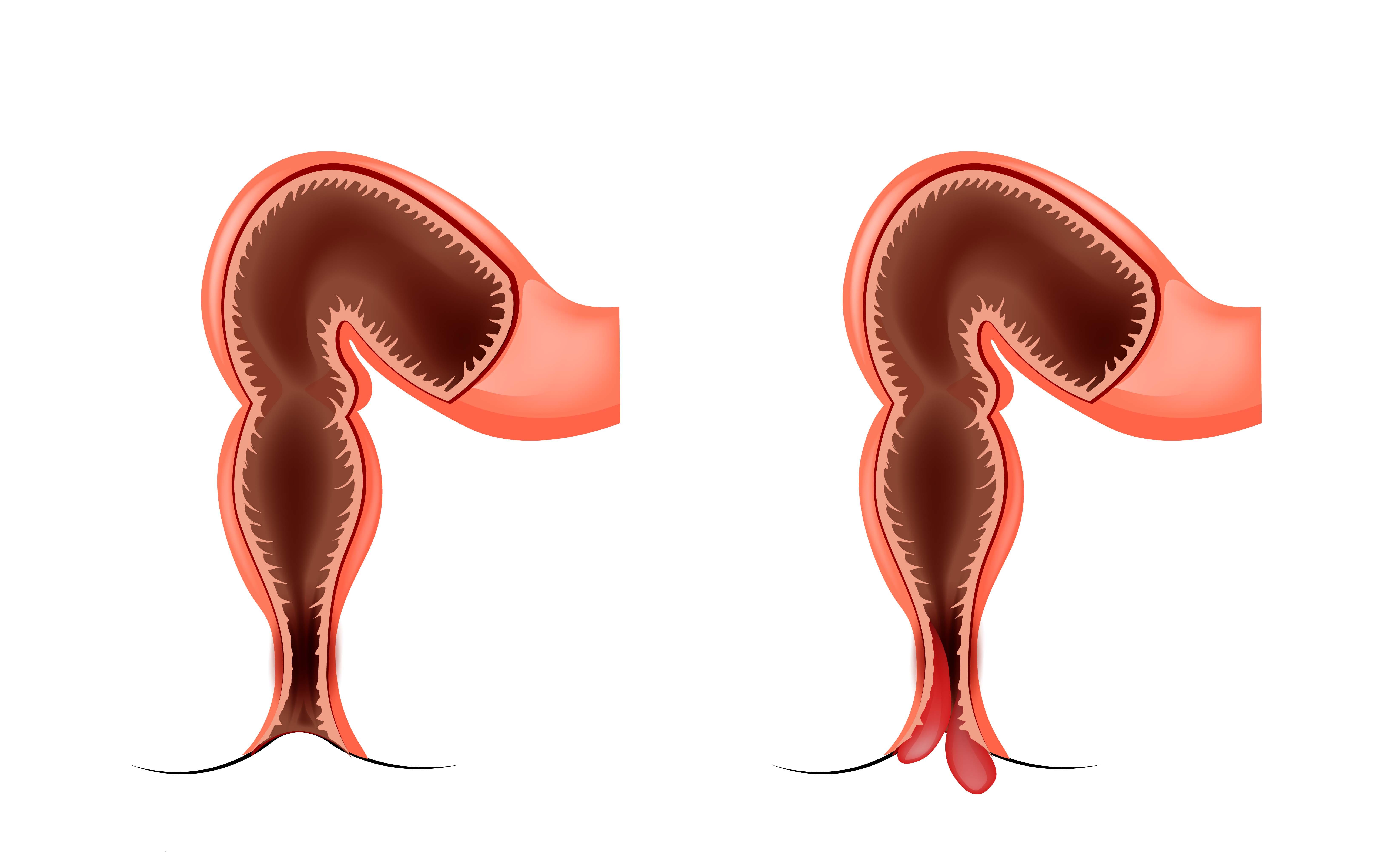 Il dolore acuto in dorso passa allatto di trattamento di uomini