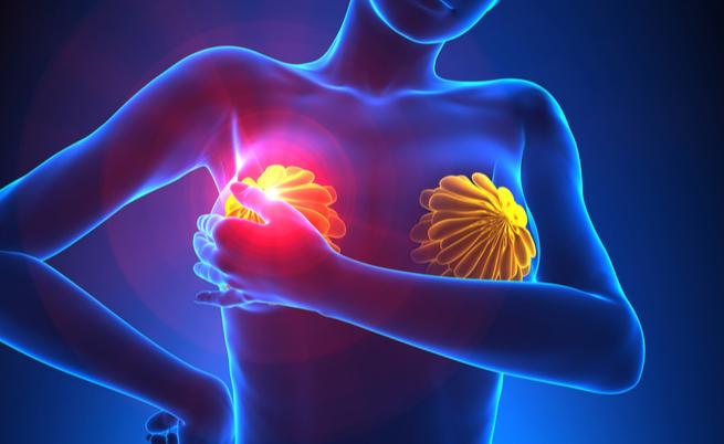 Tumore al seno: i sintomi visibili | Pazienti.it